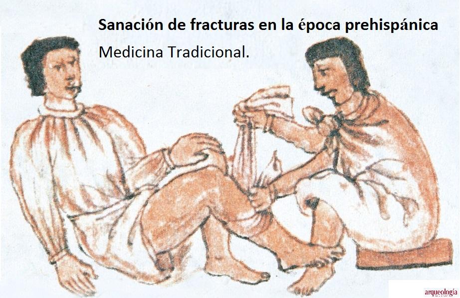 """Sanaciones con """"raíz de tuna"""" durante la época prehispánica."""